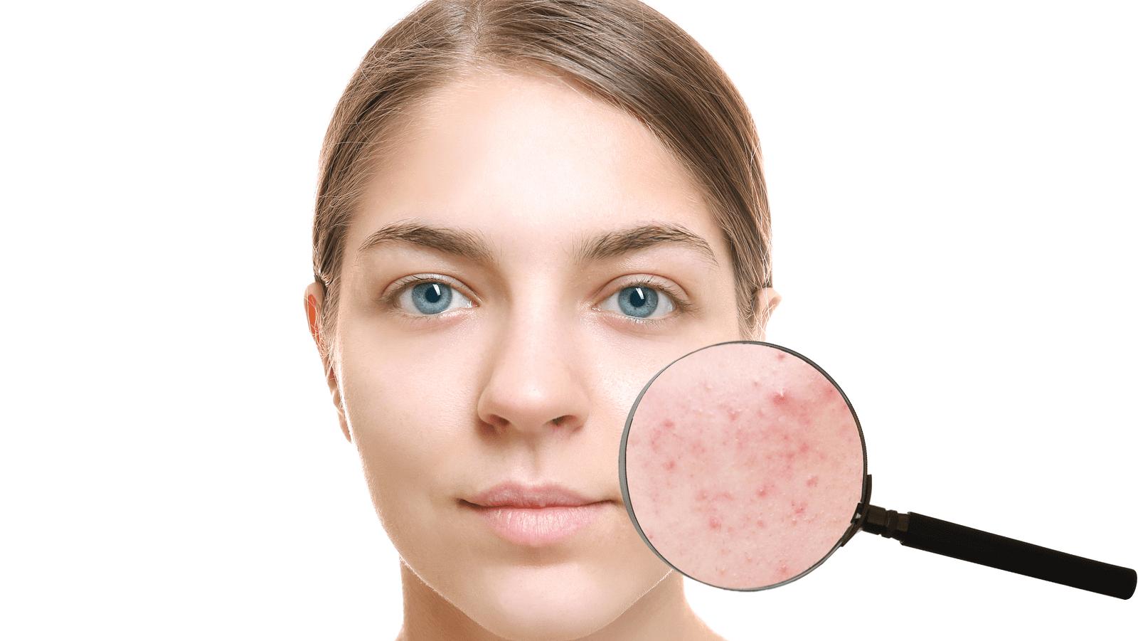 traitement de la acne avec le laser EVRL