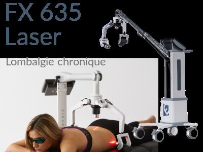 Erchonia FX 635 laser movil