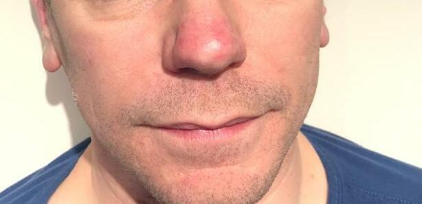 Traitement de l'acné EVRL