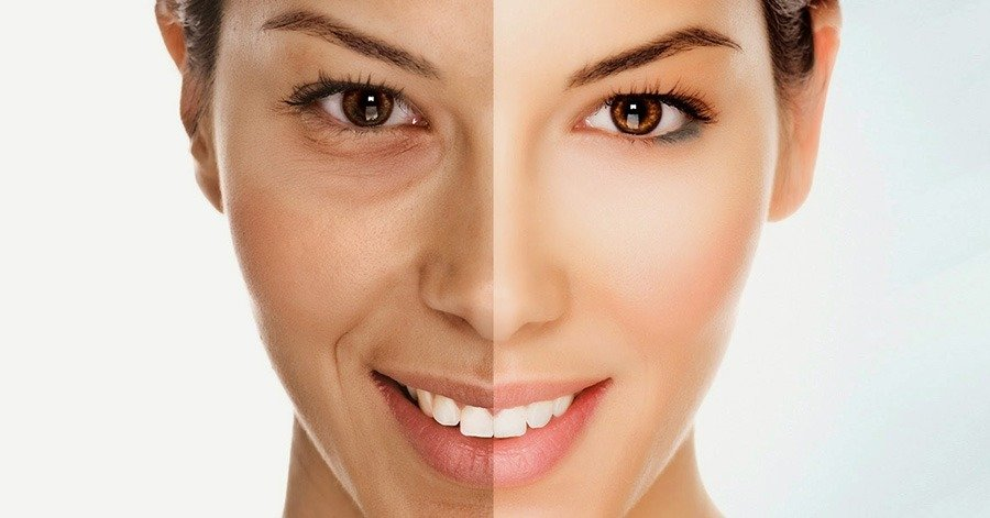 skin shape rajeunissement