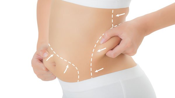 verju body contouring